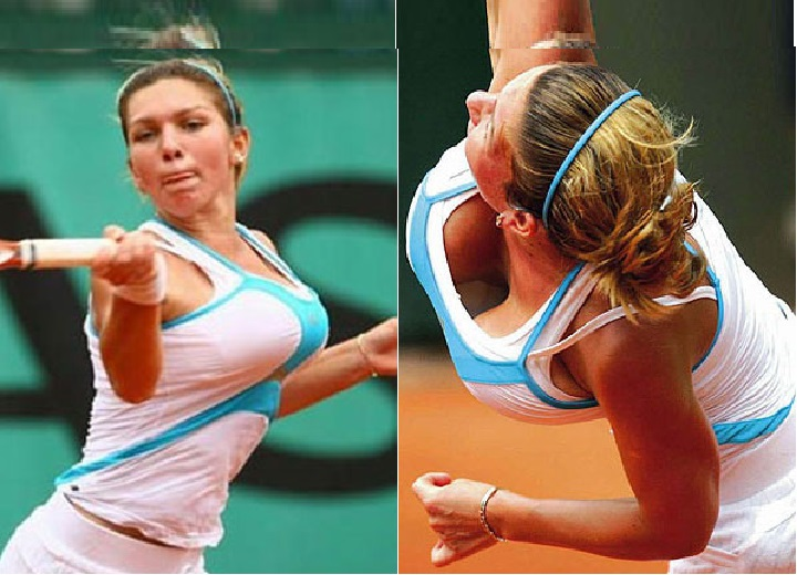 Breast Reduction Surgery Helped Halep