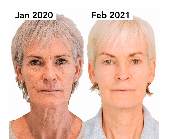 Judy Murray showcased the results of her non surgical facelift